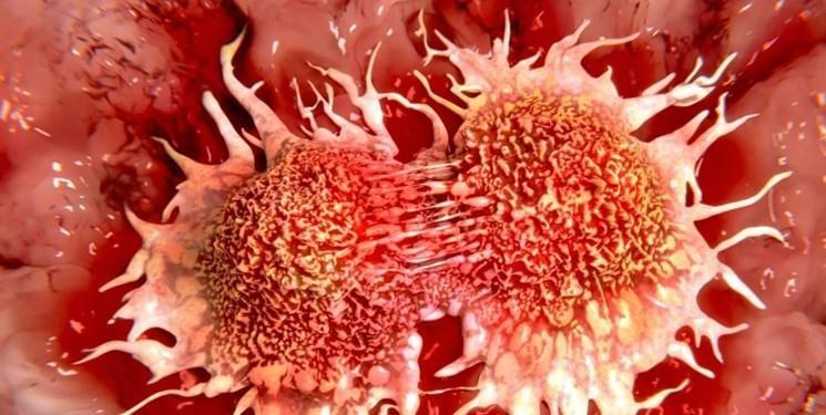 افزایش عجیب سرطان روده در جوانان