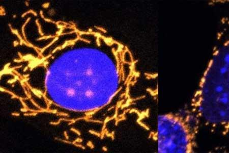 مقابله با کاهش بینایی به شیوه ژن درمانی
