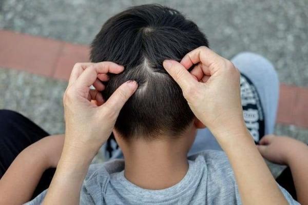 روش های موثر درمان شپش سر